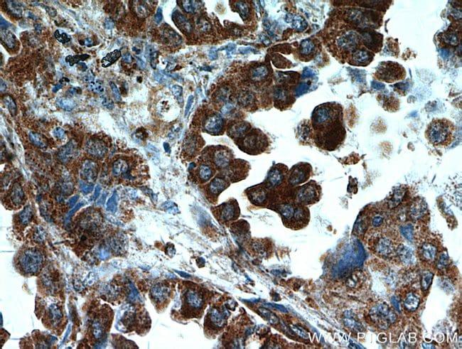 UBAP1 Rabbit anti-Human, Mouse, Rat, Polyclonal, Proteintech 150 μL; Unconjugated Ver productos