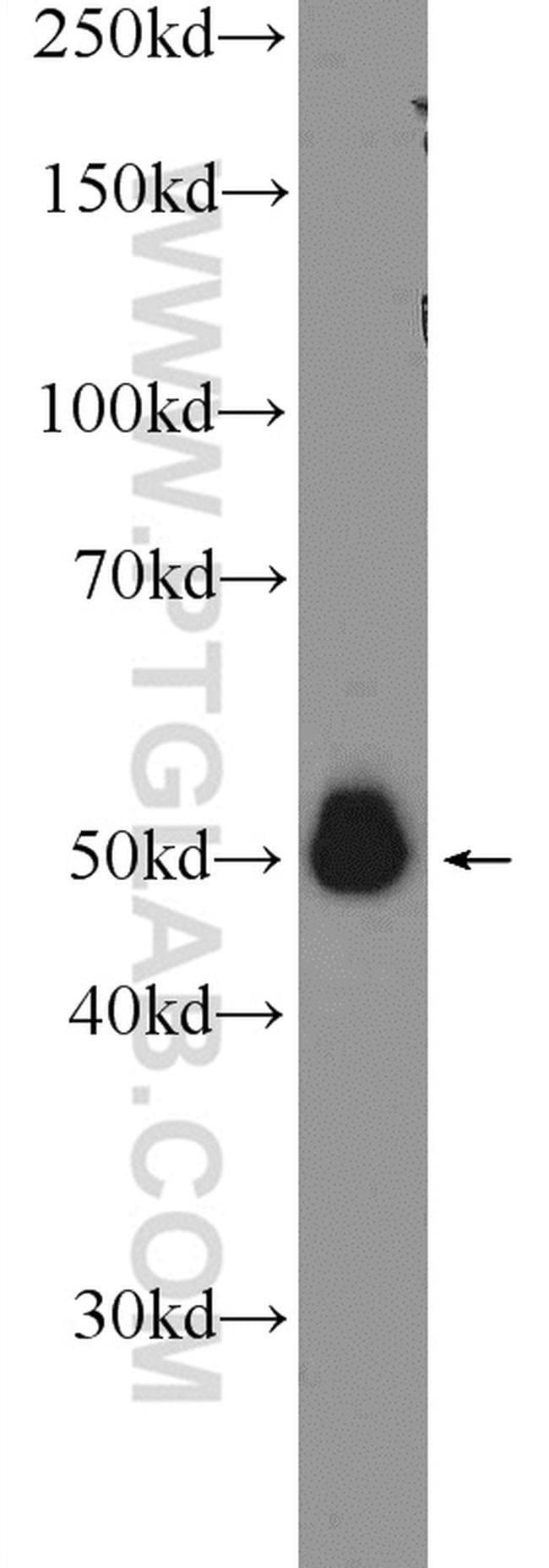 A4GALT Rabbit anti-Human, Mouse, Polyclonal, Proteintech 150 μL; Unconjugated Ver productos