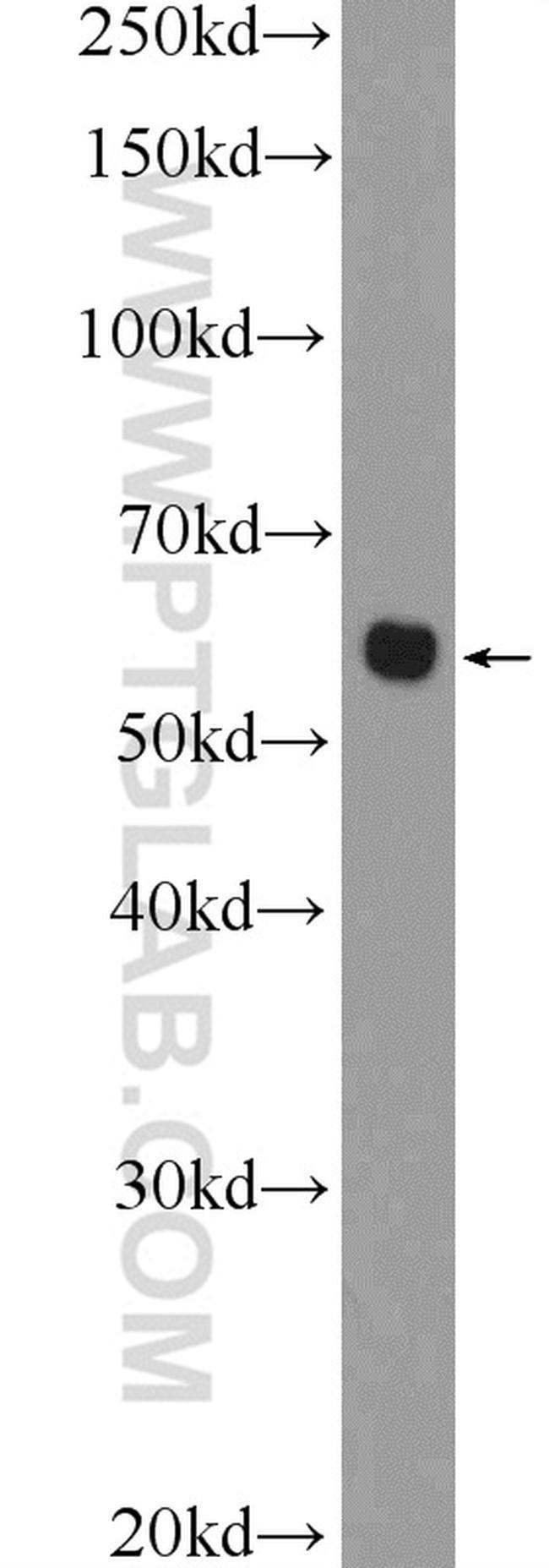 CHST1 Rabbit anti-Human, Mouse, Rat, Polyclonal, Proteintech 150 μL; Unconjugated Ver productos