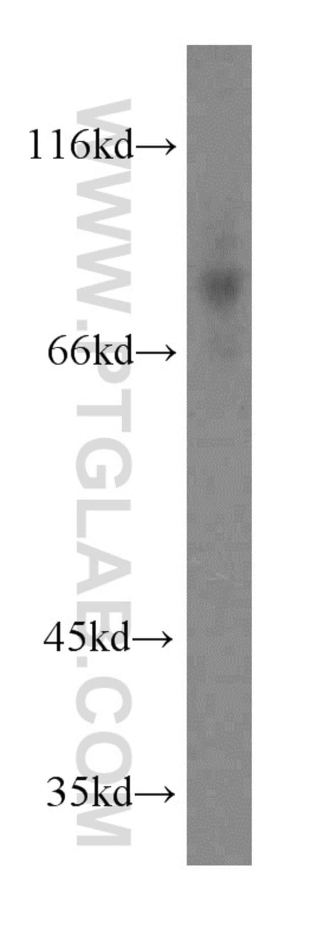 CD97 Rabbit anti-Human, Polyclonal, Proteintech 20 μL; Unconjugated voir les résultats