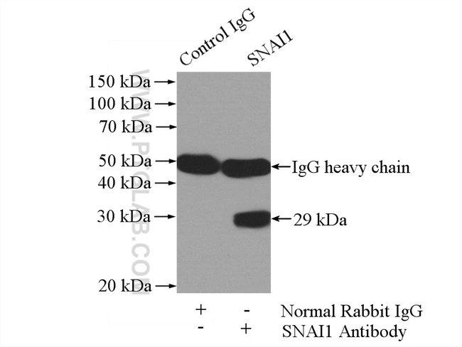 SNAI1 Rabbit anti-Human, Mouse, Rat, Polyclonal, Proteintech 20 μL; Unconjugated voir les résultats