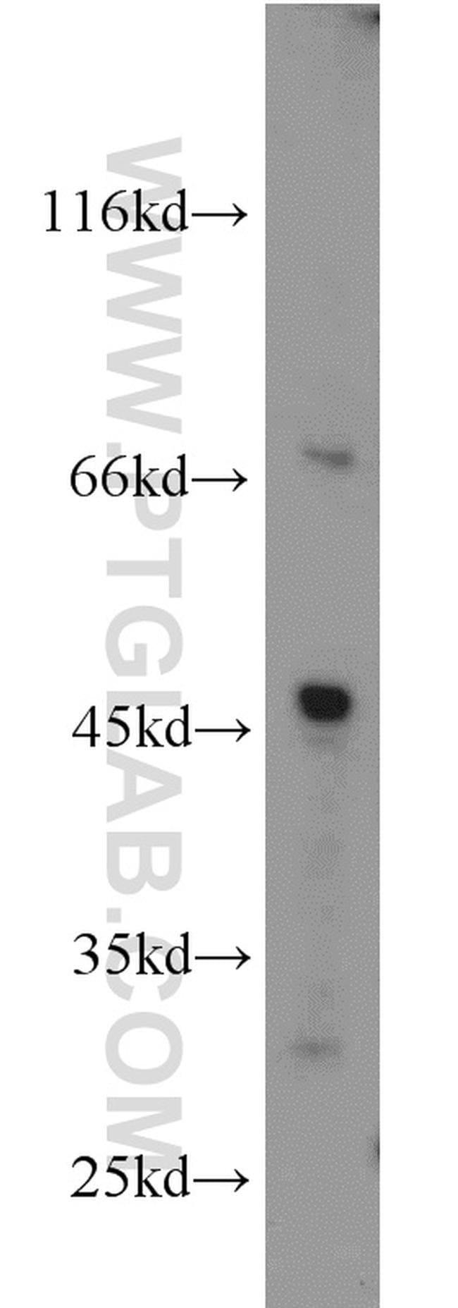 GYG2 Rabbit anti-Human, Polyclonal, Proteintech 20 μL; Unconjugated voir les résultats