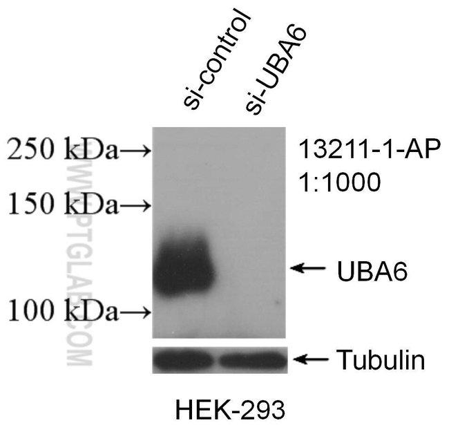UBA6 Rabbit anti-Human, Mouse, Rat, Polyclonal, Proteintech 20 μL; Unconjugated voir les résultats