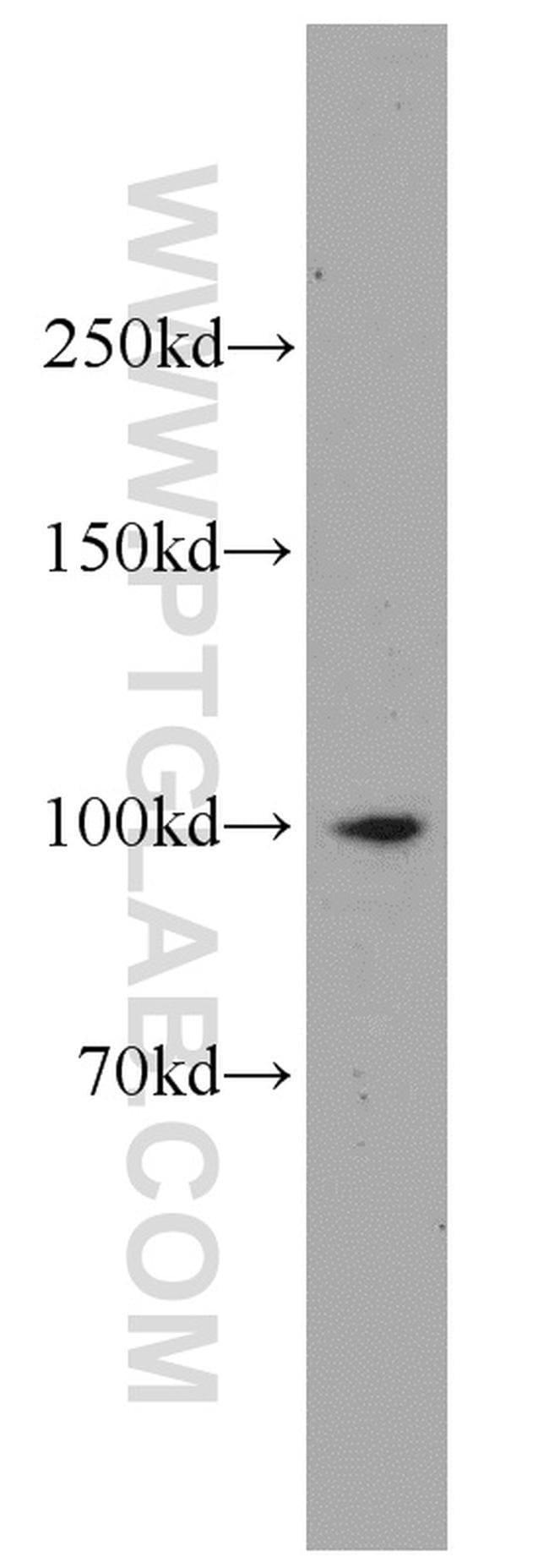 IL12RB1 Rabbit anti-Human, Polyclonal, Proteintech 20 μL; Unconjugated voir les résultats
