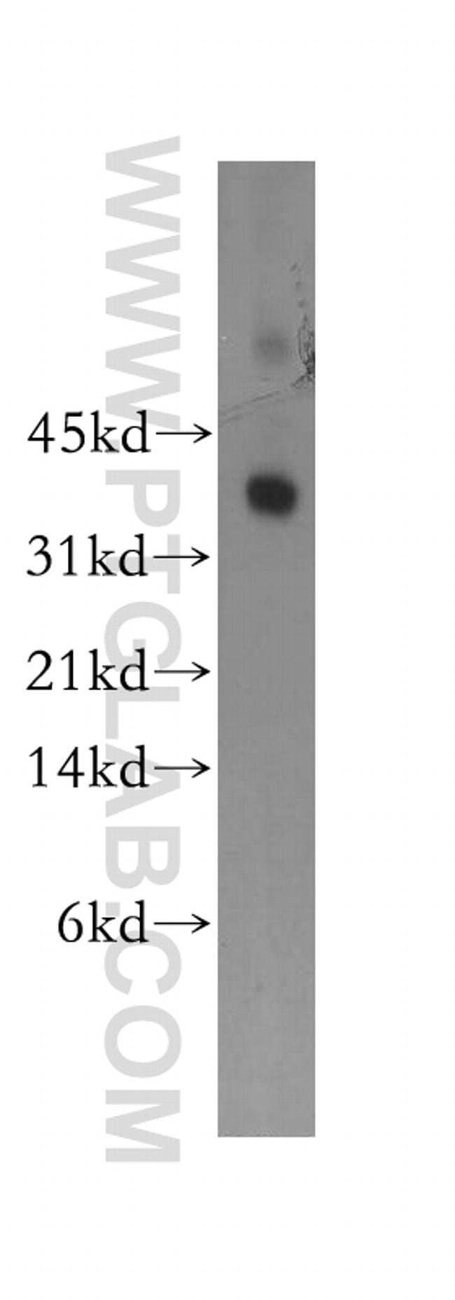 Syntaxin 11 Rabbit anti-Human, Mouse, Rat, Polyclonal, Proteintech 20 μL; Unconjugated voir les résultats
