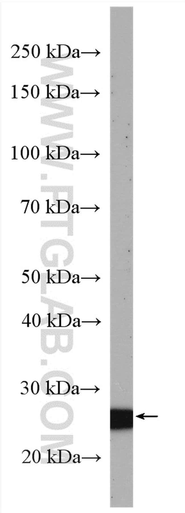 SLD5 Rabbit anti-Human, Mouse, Polyclonal, Proteintech 20 μL; Unconjugated voir les résultats