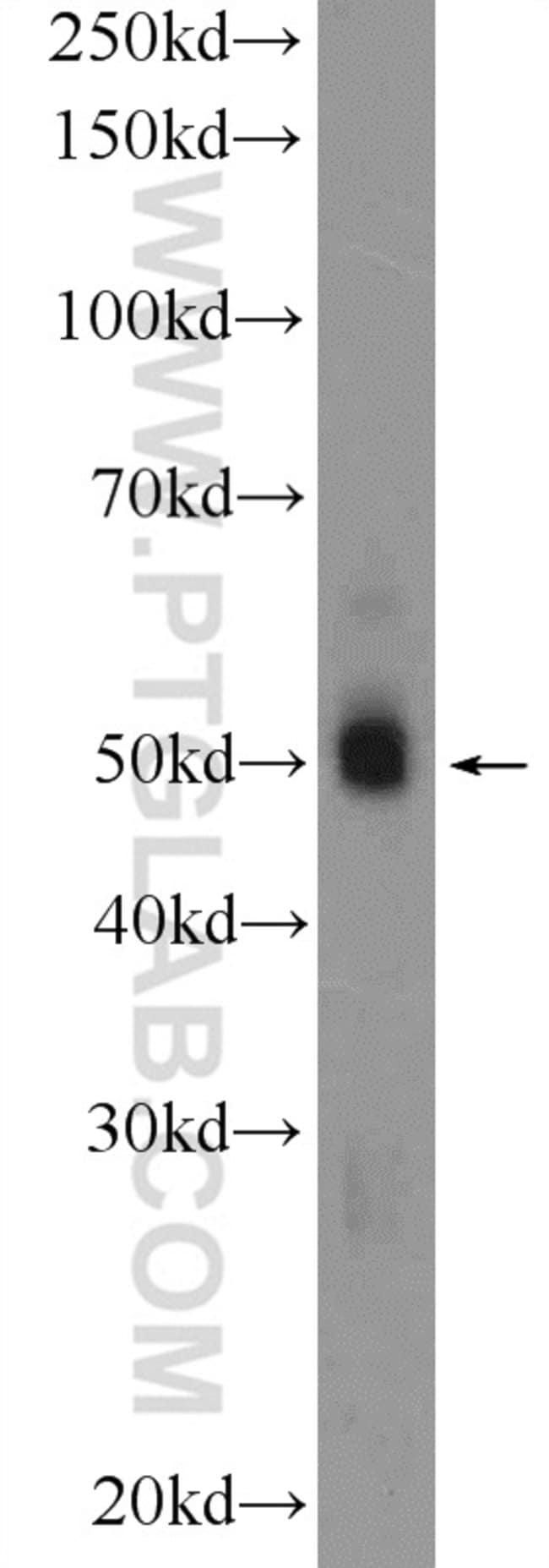 FBLIM1 Rabbit anti-Human, Mouse, Rat, Polyclonal, Proteintech 20 μL; Unconjugated voir les résultats