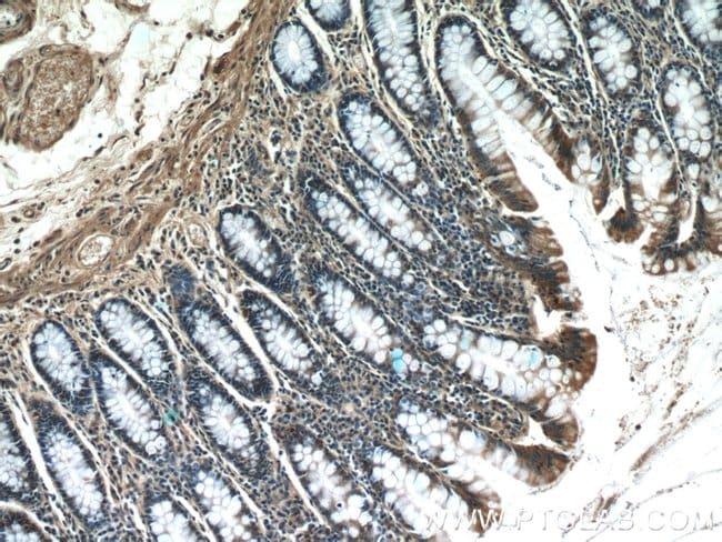 SCFD2 Rabbit anti-Human, Mouse, Rat, Polyclonal, Proteintech 20 μL; Unconjugated voir les résultats