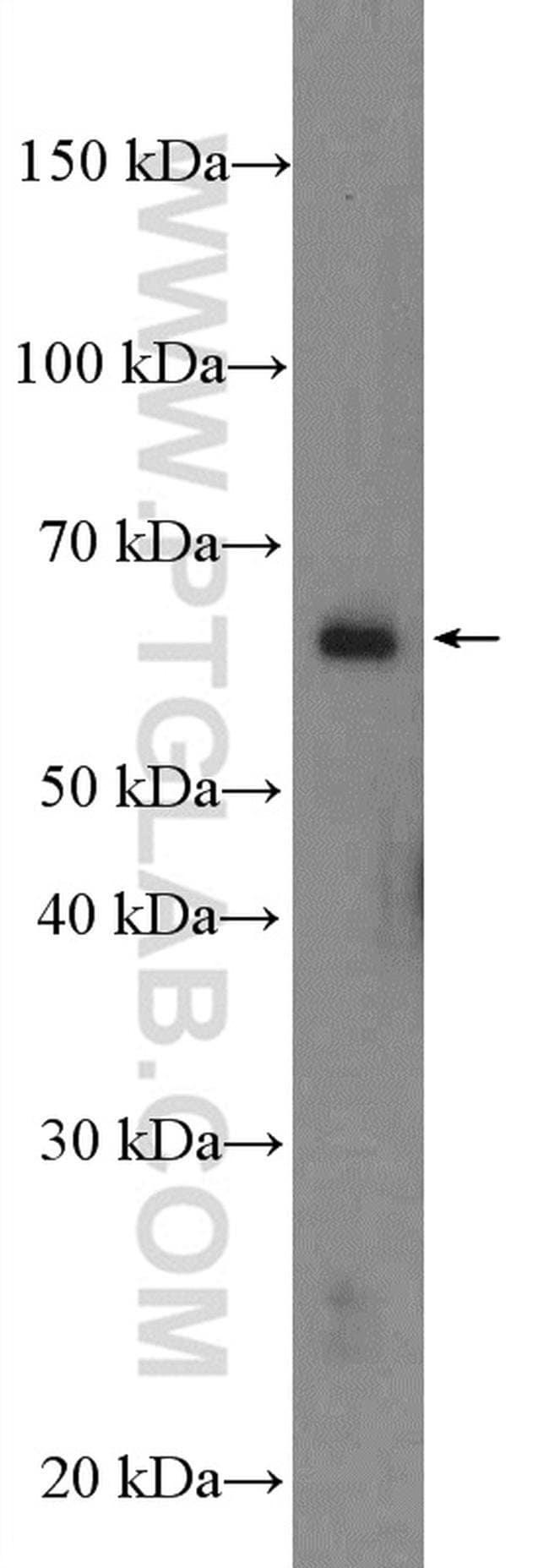 MAPK15 Rabbit anti-Human, Mouse, Rat, Polyclonal, Proteintech 20 μL; Unconjugated voir les résultats