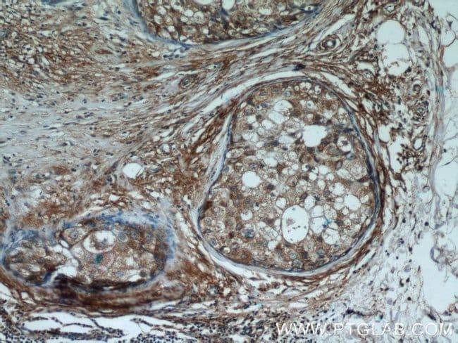 Cryptochrome 1 Rabbit anti-Human, Mouse, Rat, Polyclonal, Proteintech 20 μL; Unconjugated voir les résultats