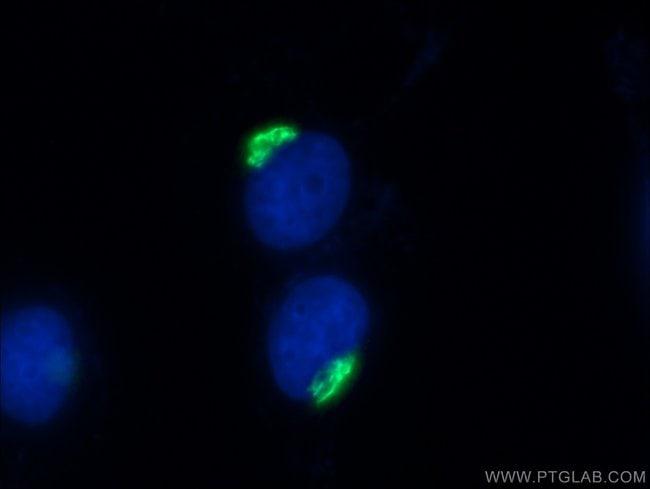 p115/USO1 Rabbit anti-Human, Mouse, Rat, Polyclonal, Proteintech 20 μL; Unconjugated voir les résultats