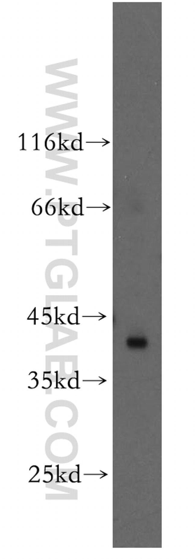 RAD51L1 Rabbit anti-Human, Mouse, Rat, Polyclonal, Proteintech 20 μL; Unconjugated voir les résultats