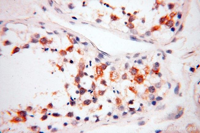 FKBP6 Rabbit anti-Human, Mouse, Rat, Polyclonal, Proteintech 20 μL; Unconjugated voir les résultats