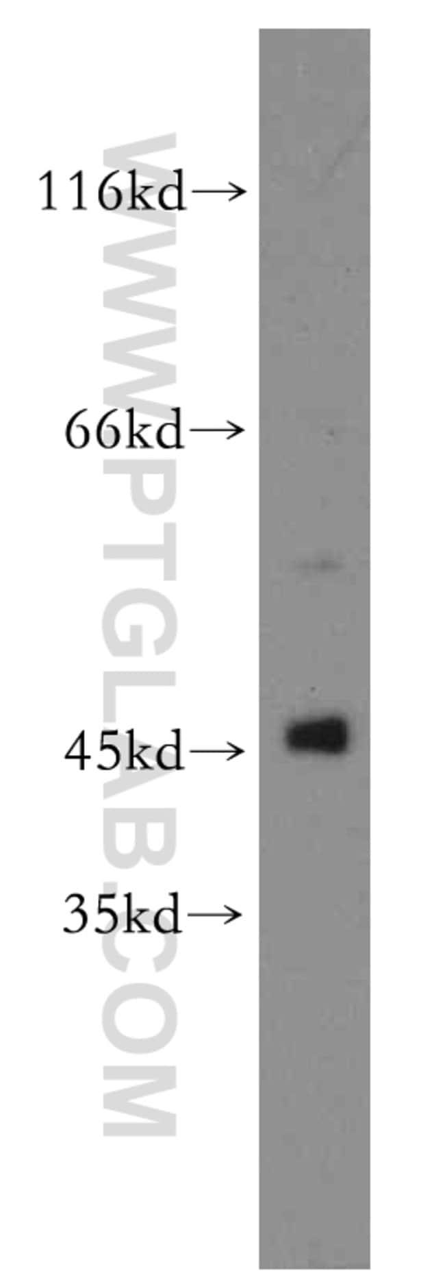 TTL Rabbit anti-Human, Mouse, Rat, Polyclonal, Proteintech 20 μL; Unconjugated voir les résultats