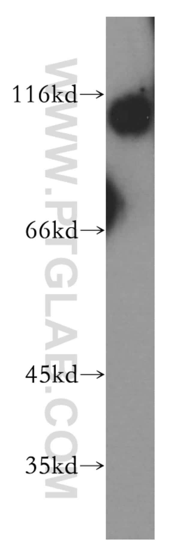 TROAP Rabbit anti-Human, Polyclonal, Proteintech 20 μL; Unconjugated voir les résultats