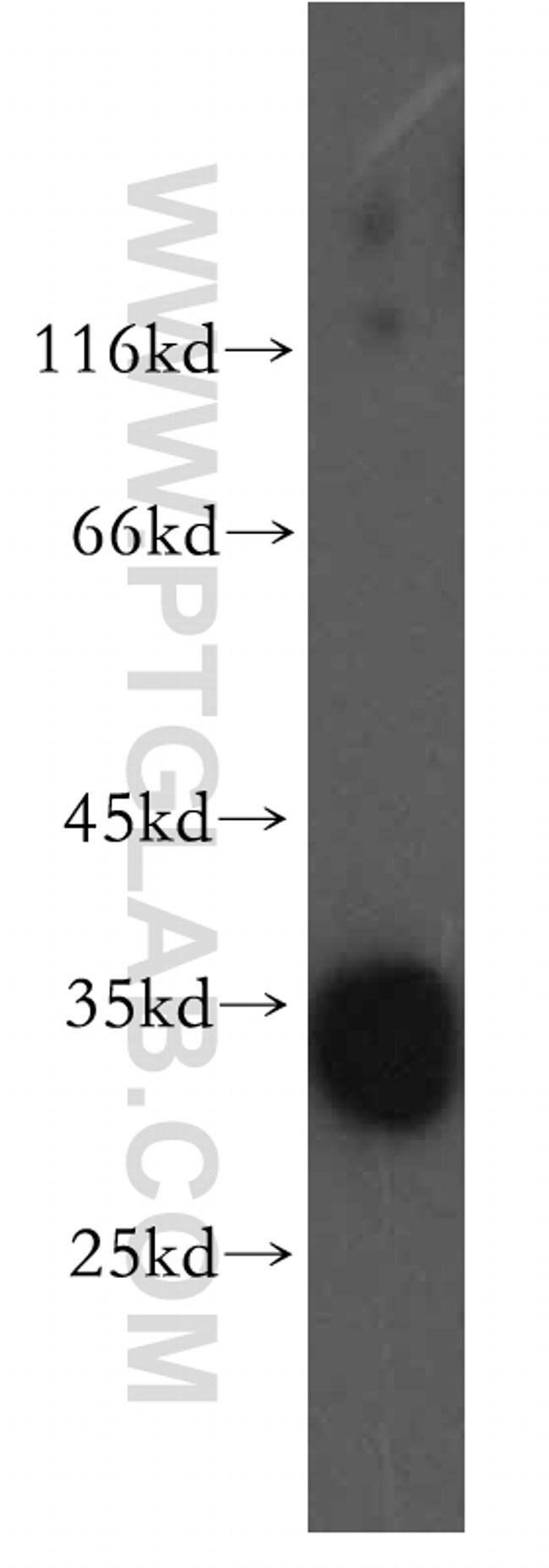 DNASE1L1 Rabbit anti-Human, Mouse, Rat, Polyclonal, Proteintech 20 μL; Unconjugated voir les résultats