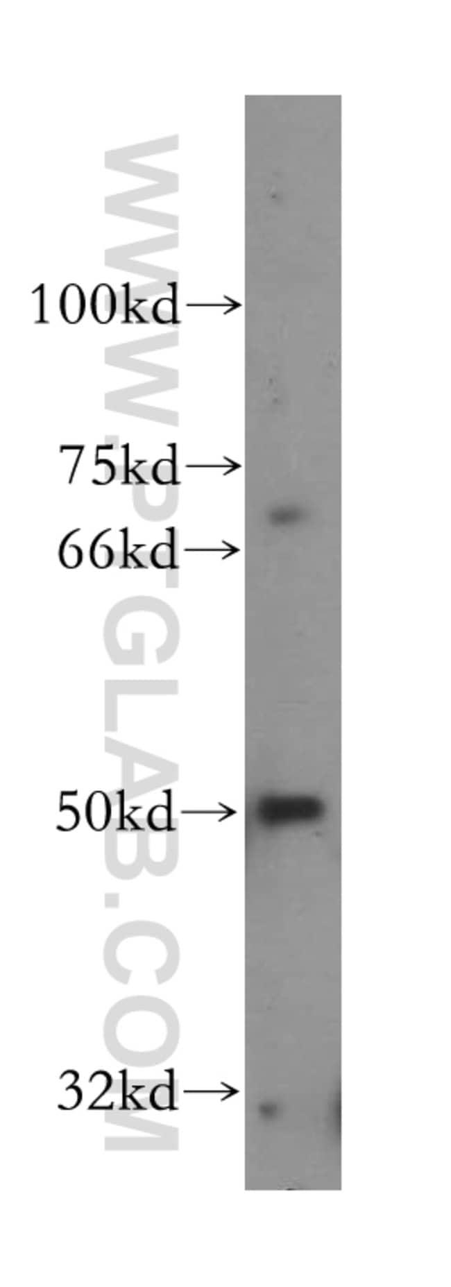 NR2C1 Rabbit anti-Human, Mouse, Rat, Polyclonal, Proteintech 20 μL; Unconjugated voir les résultats