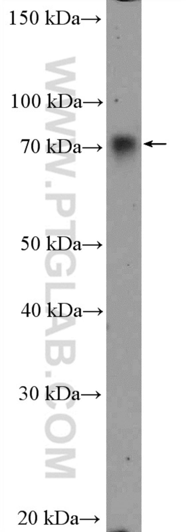WDR1 Rabbit anti-Human, Mouse, Rat, Polyclonal, Proteintech 20 μL; Unconjugated voir les résultats