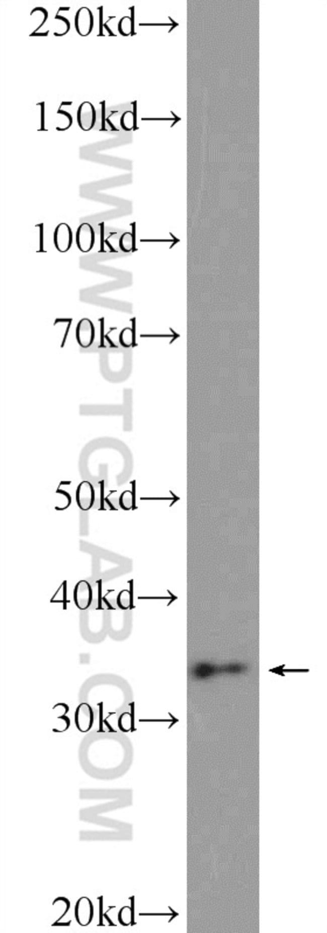 CHMP4B Rabbit anti-Human, Mouse, Rat, Polyclonal, Proteintech 20 μL; Unconjugated voir les résultats