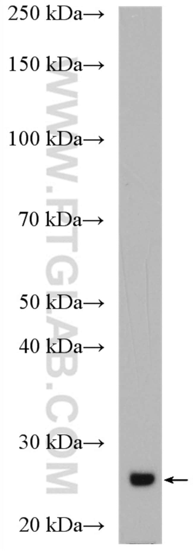 IGJ Rabbit anti-Human, Mouse, Rat, Polyclonal, Proteintech 20 μL; Unconjugated voir les résultats