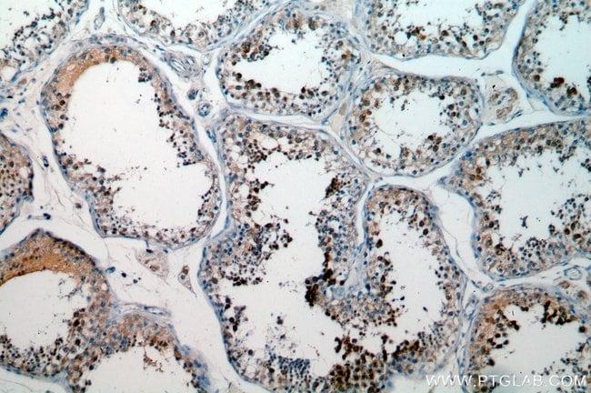 BOULE Rabbit anti-Human, Mouse, Rat, Polyclonal, Proteintech 20 μL; Unconjugated voir les résultats