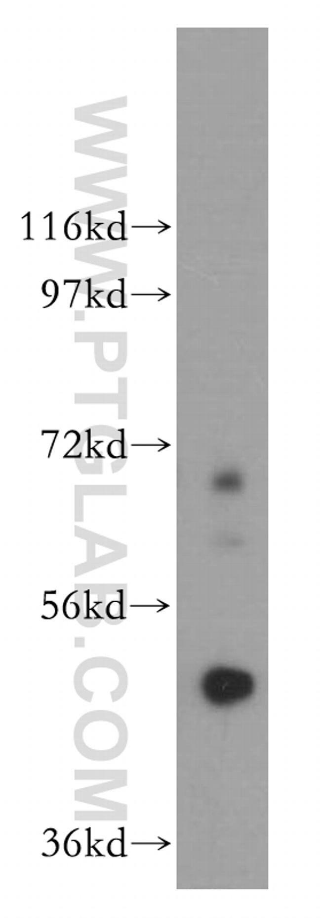 Carboxypeptidase A5 Rabbit anti-Human, Mouse, Rat, Polyclonal, Proteintech 20 μL; Unconjugated voir les résultats