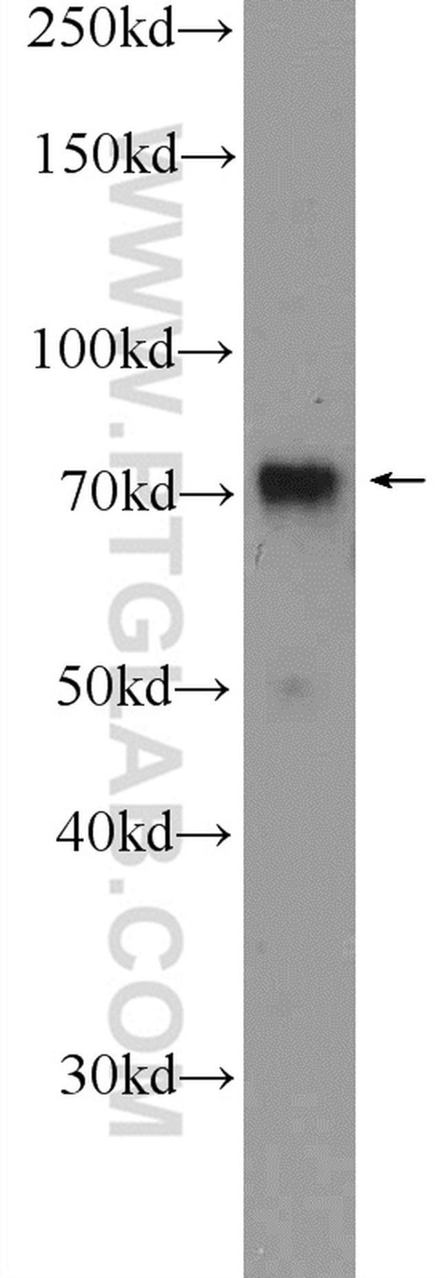 RACGAP1 Rabbit anti-Human, Mouse, Polyclonal, Proteintech 20 μL; Unconjugated voir les résultats