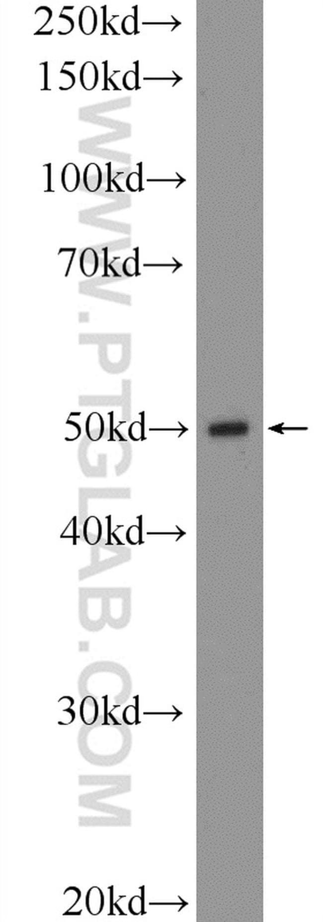 SLC7A5 Rabbit anti-Human, Mouse, Rat, Polyclonal, Proteintech 20 μL; Unconjugated voir les résultats
