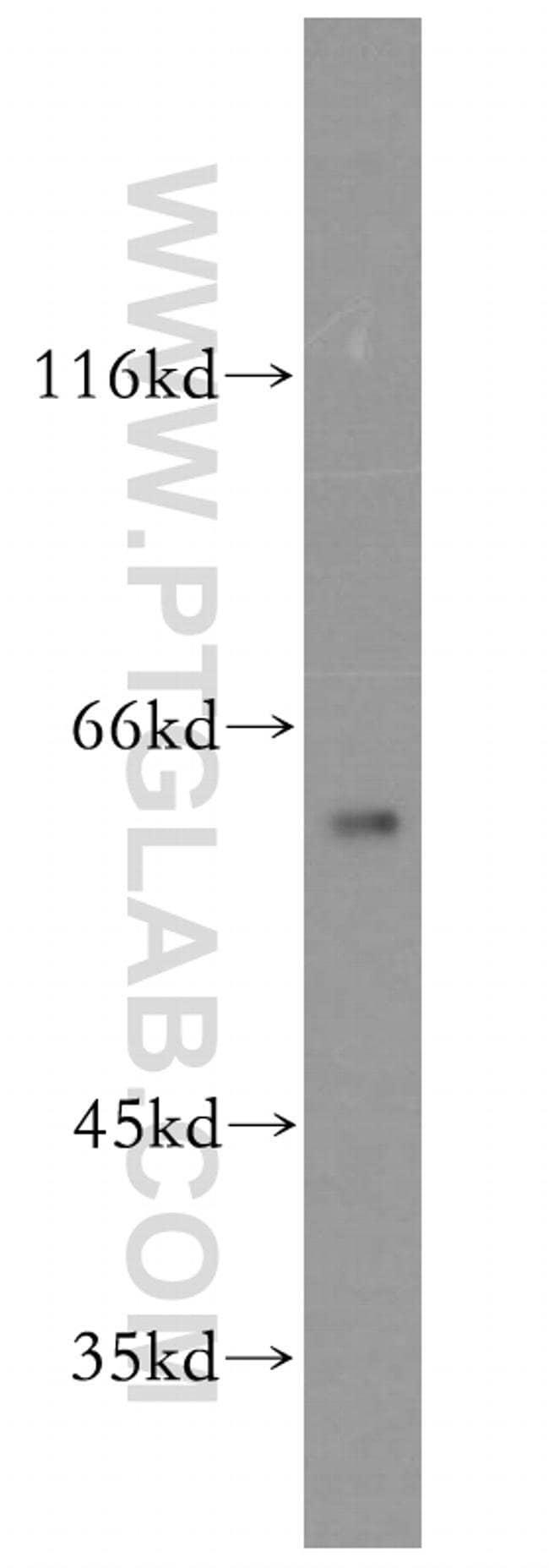 CPNE6 Rabbit anti-Human, Mouse, Rat, Polyclonal, Proteintech 150 μL; Unconjugated voir les résultats