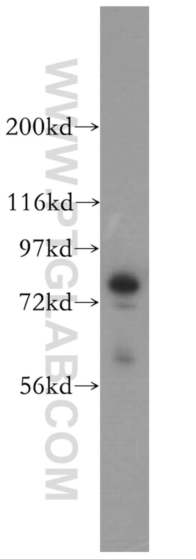Radixin Rabbit anti-Human, Mouse, Rat, Polyclonal, Proteintech 150 μL; Unconjugated voir les résultats