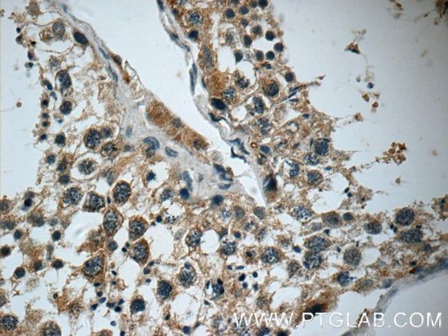 DARS2 Rabbit anti-Human, Mouse, Rat, Polyclonal, Proteintech 150 μL; Unconjugated voir les résultats