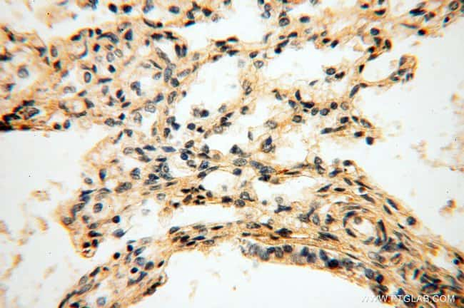 DIXDC1 Rabbit anti-Human, Mouse, Rat, Polyclonal, Proteintech 150 μL; Unconjugated voir les résultats