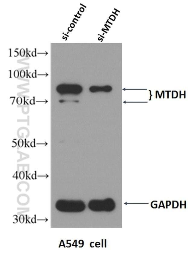 AEG-1/MTDH Rabbit anti-Human, Mouse, Rat, Polyclonal, Proteintech 150 μL; Unconjugated voir les résultats