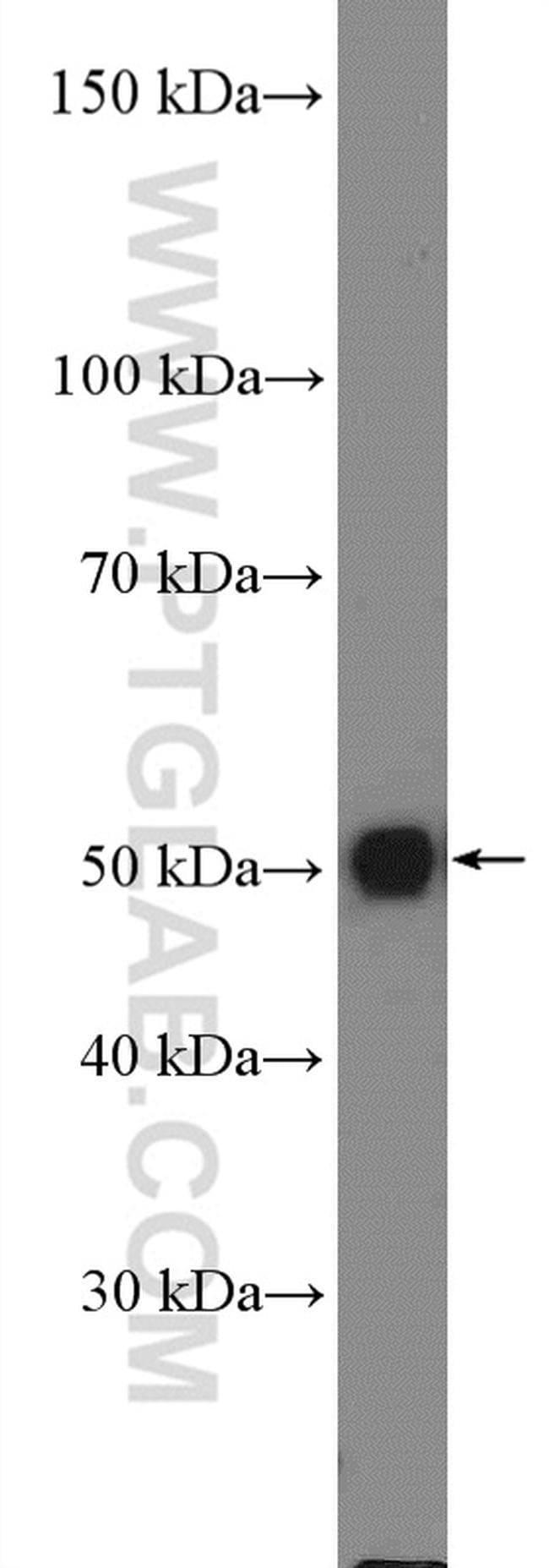 S1PR5/EDG8 Rabbit anti-Human, Mouse, Rat, Polyclonal, Proteintech 150 μL; Unconjugated voir les résultats