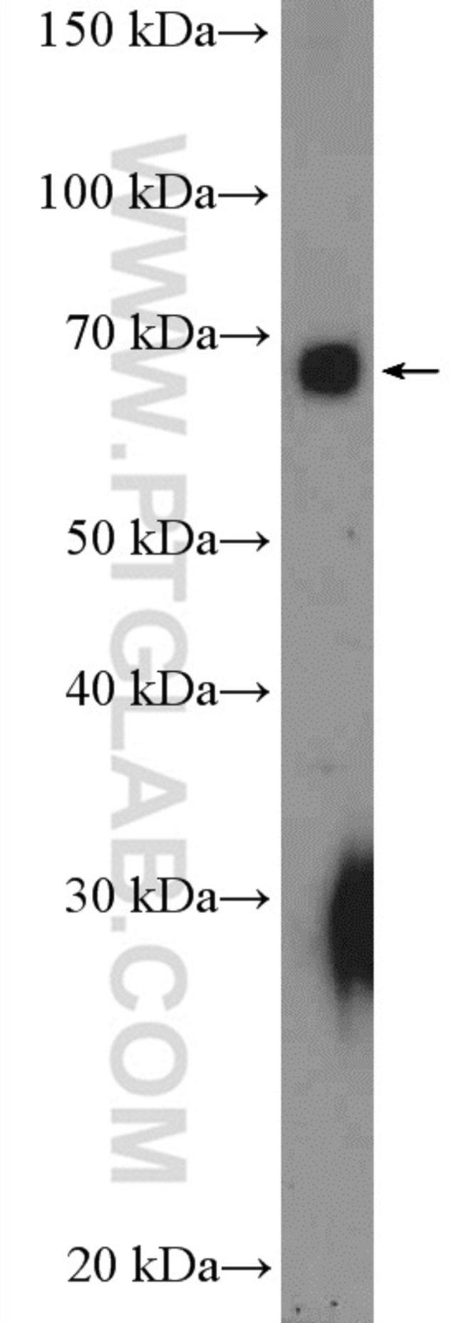 PKC iota Rabbit anti-Chicken, Human, Polyclonal, Proteintech 150 μL; Unconjugated voir les résultats