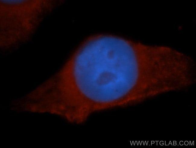 HPS5 Rabbit anti-Human, Mouse, Rat, Polyclonal, Proteintech 150 μL; Unconjugated voir les résultats