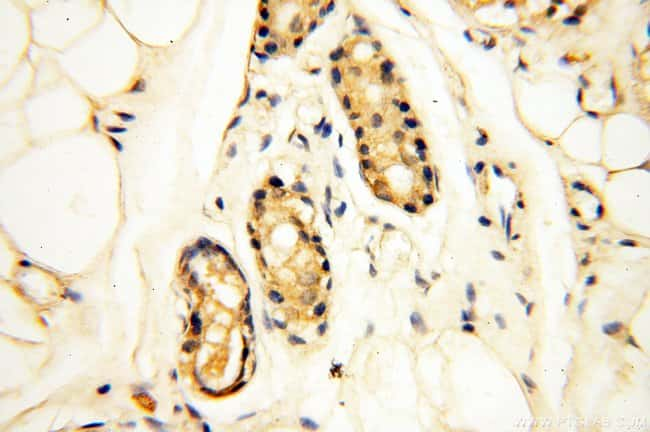 AKAP3 Rabbit anti-Human, Mouse, Rat, Polyclonal, Proteintech 150 μL; Unconjugated voir les résultats