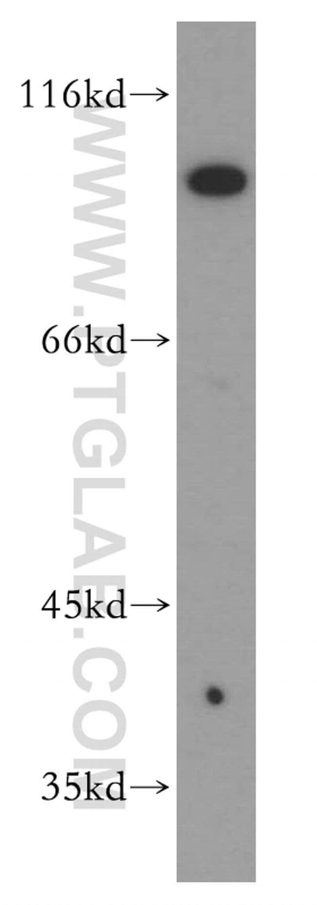 PTPRE Rabbit anti-Human, Polyclonal, Proteintech 150 μL; Unconjugated voir les résultats
