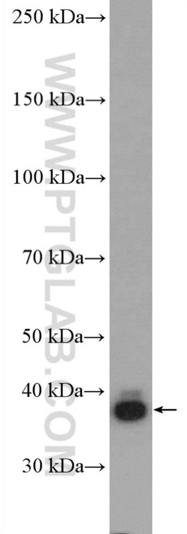 GNAQ Rabbit anti-Human, Mouse, Polyclonal, Proteintech 150 μL; Unconjugated voir les résultats