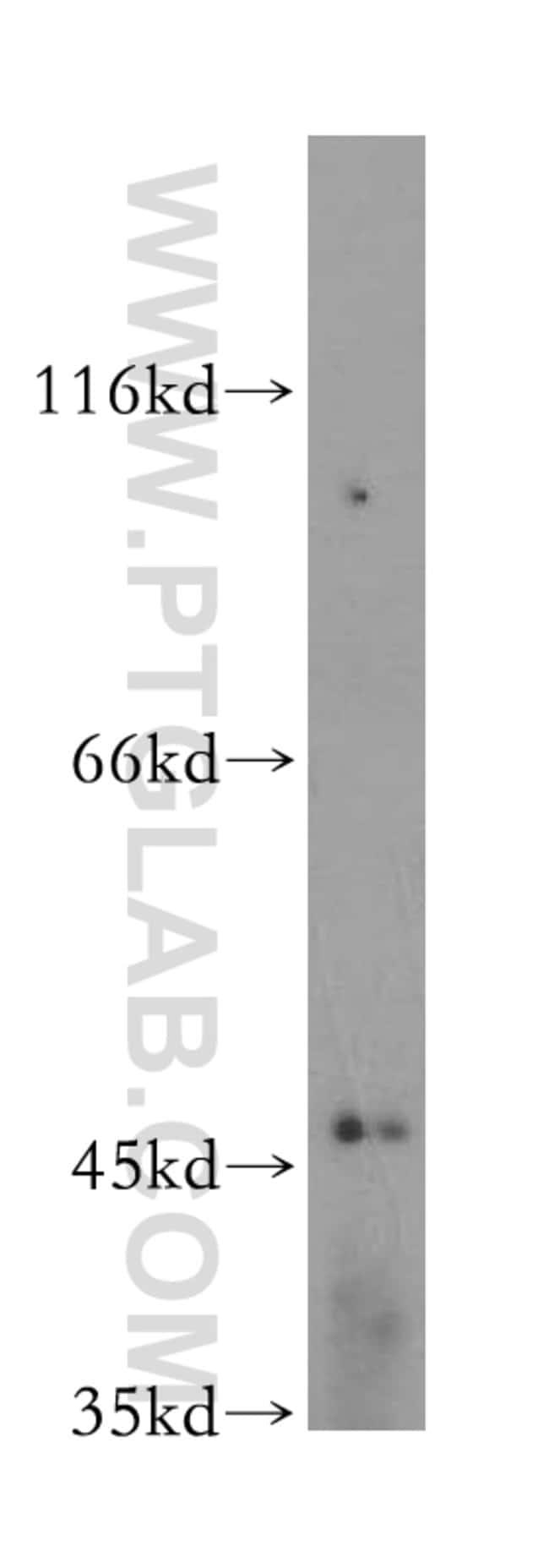 FBXL14 Rabbit anti-Human, Mouse, Rat, Polyclonal, Proteintech 150 μL; Unconjugated voir les résultats