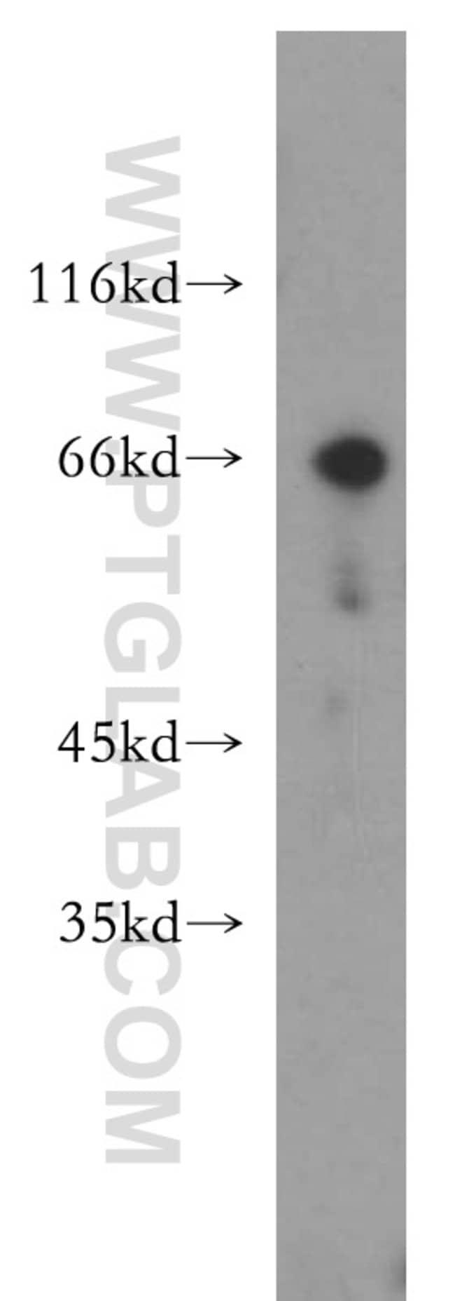 Chk2 Rabbit anti-Human, Mouse, Rat, Polyclonal, Proteintech 150 μL; Unconjugated voir les résultats