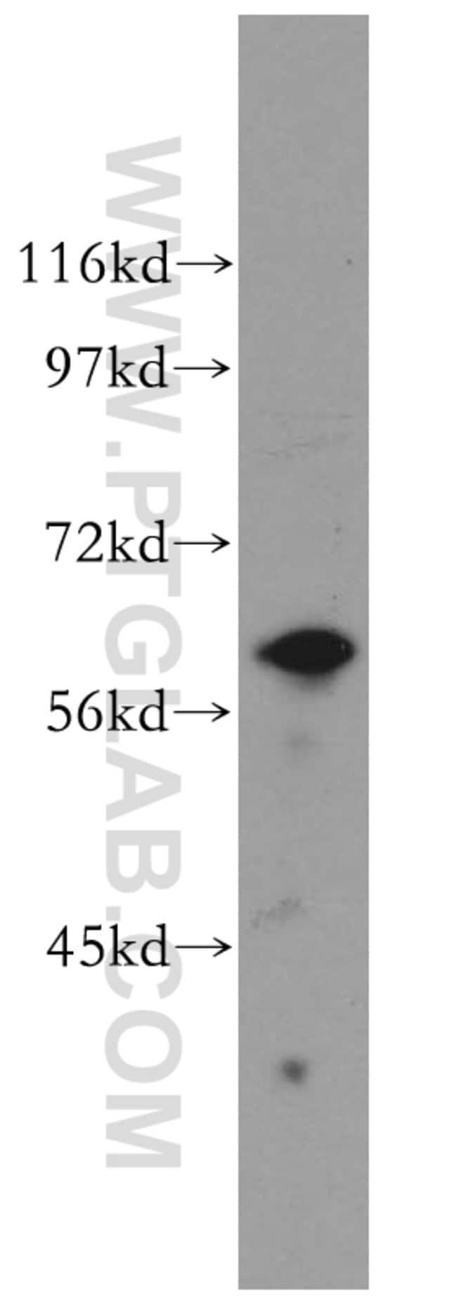 KPNA5 Rabbit anti-Human, Mouse, Rat, Polyclonal, Proteintech 20 μL; Unconjugated Ver productos