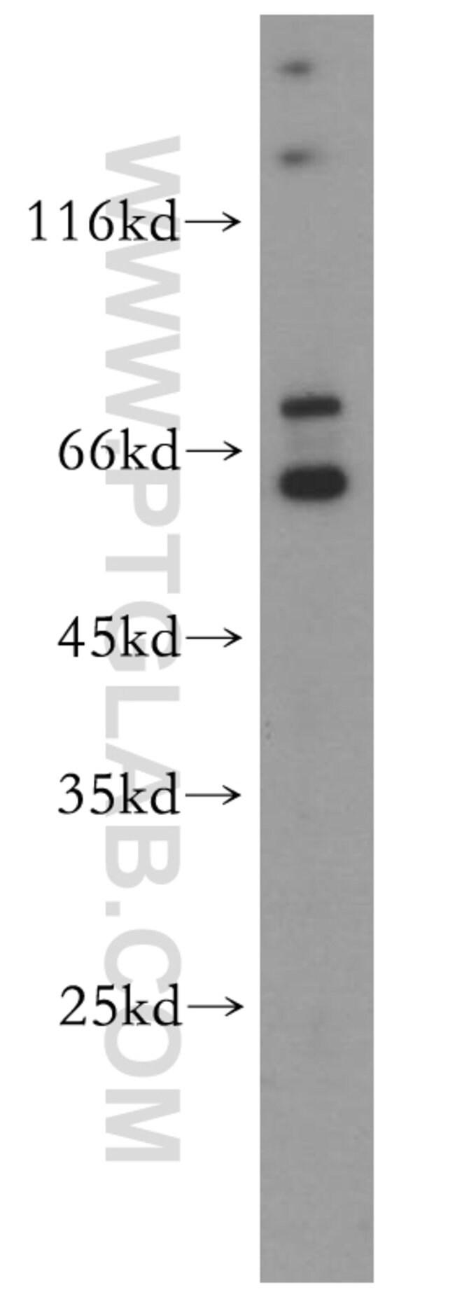 SYNCRIP Rabbit anti-Human, Mouse, Rat, Polyclonal, Proteintech 150 μL; Unconjugated voir les résultats