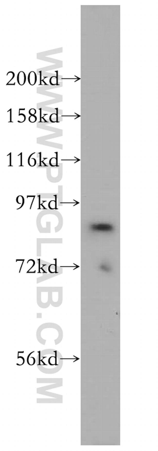 ACAP2 Rabbit anti-Human, Mouse, Rat, Polyclonal, Proteintech 150 μL; Unconjugated voir les résultats