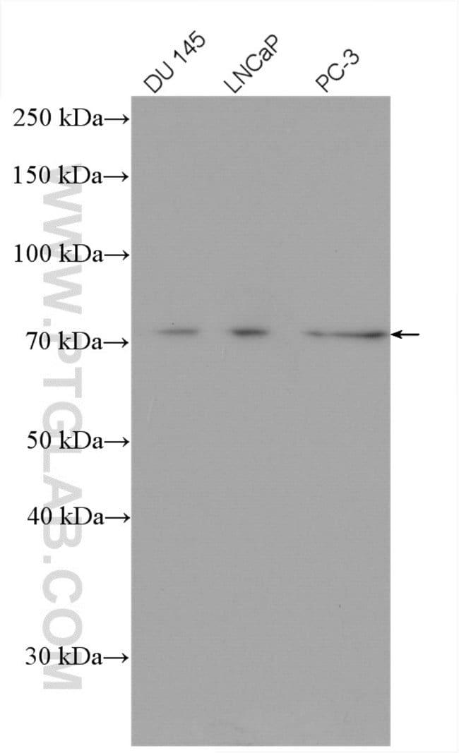 DDX3Y Rabbit anti-Human, Mouse, Rat, Polyclonal, Proteintech 150 μL; Unconjugated voir les résultats