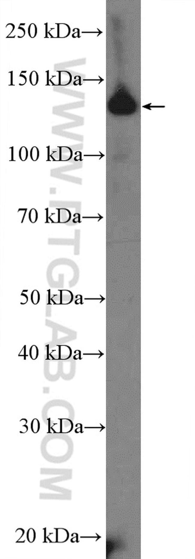 CCP1 Rabbit anti-Human, Mouse, Polyclonal, Proteintech 20 μL; Unconjugated Ver productos