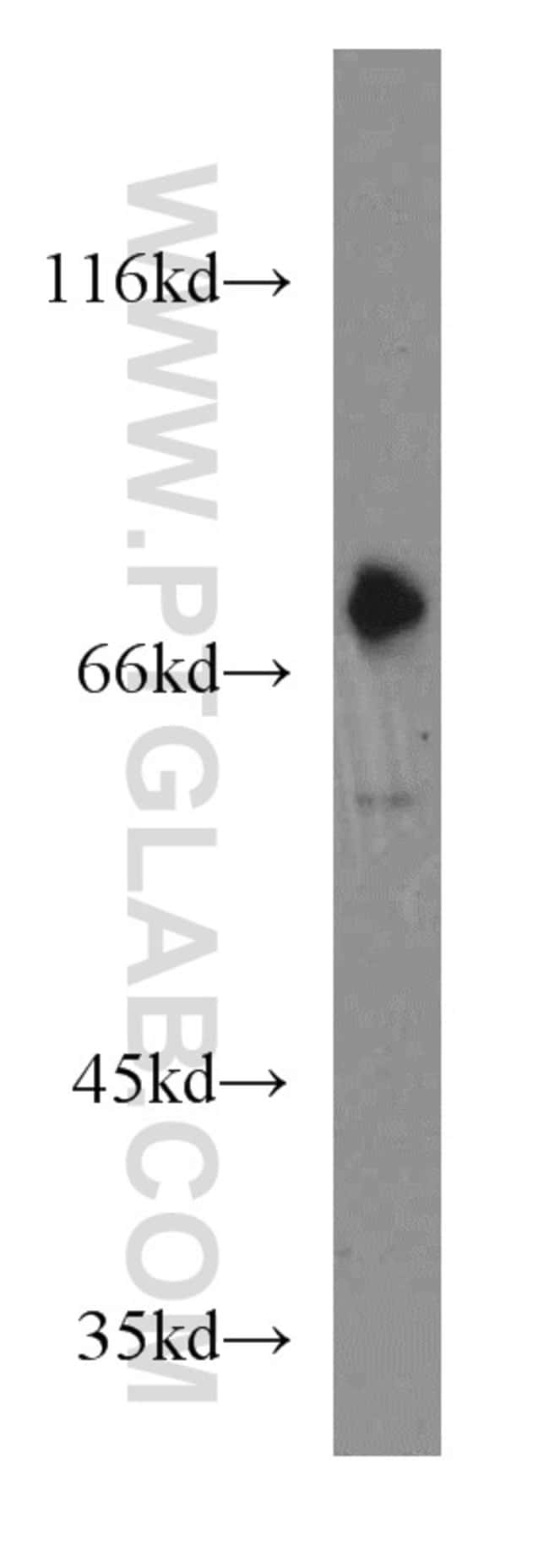 GNL1 Rabbit anti-Human, Polyclonal, Proteintech 150 μL; Unconjugated voir les résultats