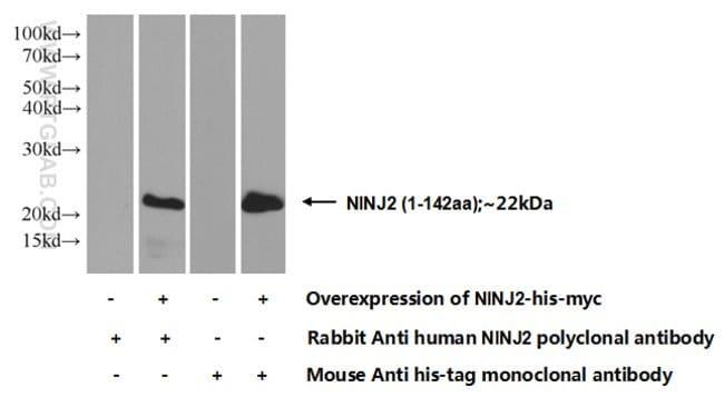 NINJ2 Rabbit anti-Human, Mouse, Rat, Polyclonal, Proteintech 150 μL; Unconjugated voir les résultats