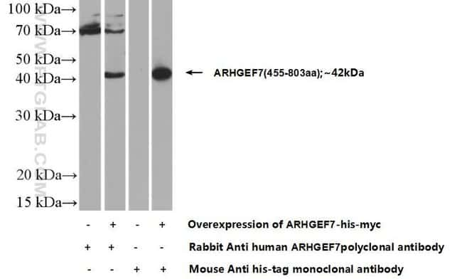 ARHGEF7 Rabbit anti-Human, Mouse, Rat, Polyclonal, Proteintech 150 μL; Unconjugated voir les résultats