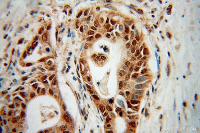 RPL17 Rabbit anti-Human, Mouse, Rat, Polyclonal, Proteintech 150 μL; Unconjugated voir les résultats